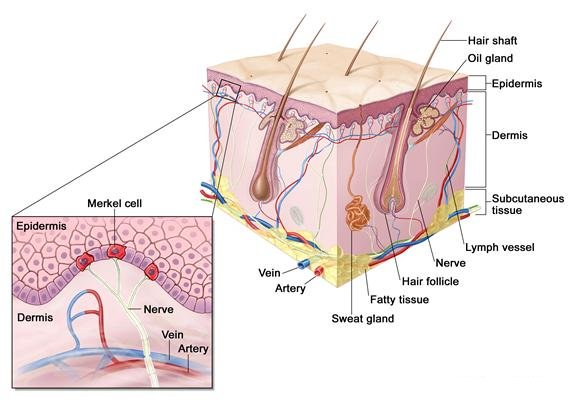carcinoma cellule di Merkel1.jpg