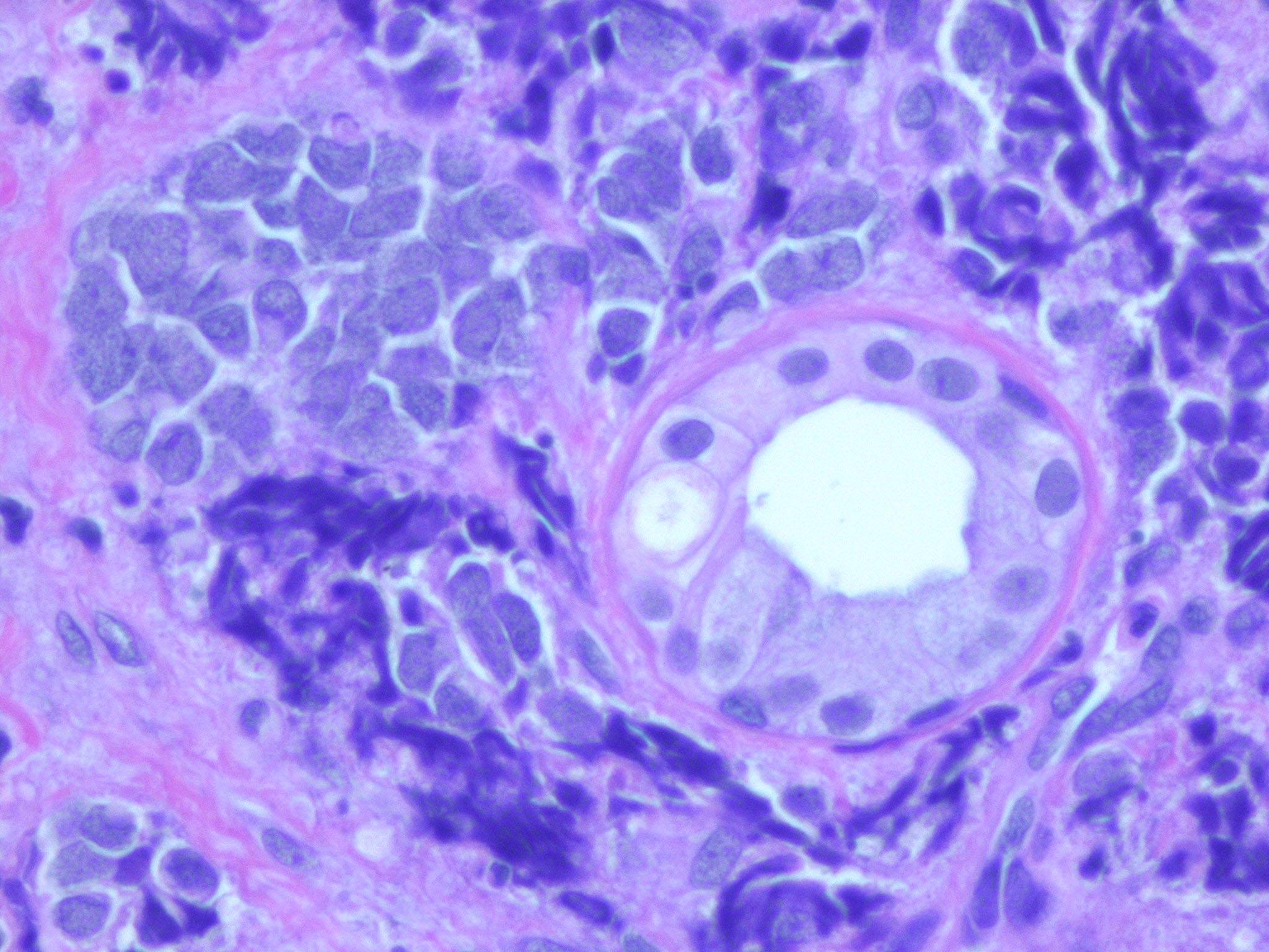 carcinoma cellule di Merkel21.jpg