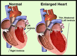 Cardiomegalia: sintomi, cure e cause