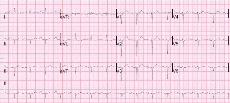 cardioversione-21.jpg