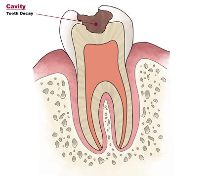 La carie dentaria:primi segni, sintomi,prevenzione e rimedi