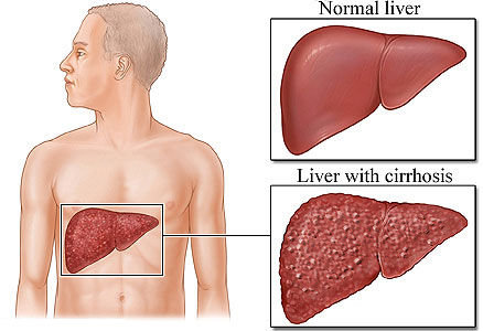 Cirrosi epatica: segni, sintomi, fattori di rischio e terapie