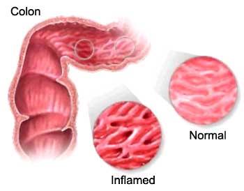 Colite ischemica : sintomi, cause, complicazioni e terapie