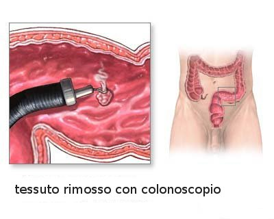 colonoscopia21.jpg