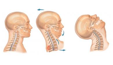 Colpo di frusta : sintomi, cause, complicazioni e cure
