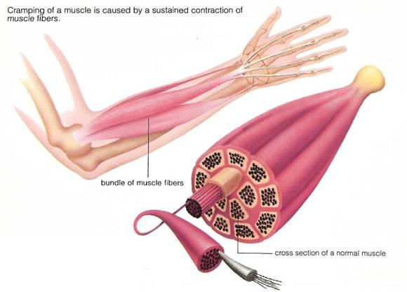 Crampi muscolari: informazioni e cause