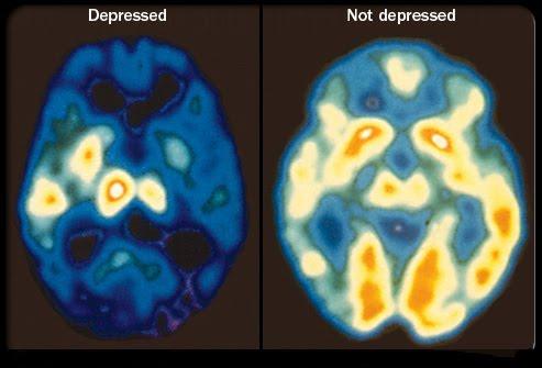 depressione esame21.jpg