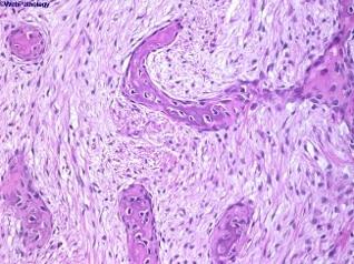 displasia fibrosa 1.jpg