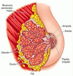 ectasia del dotto mammario1.jpg