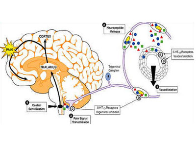 Emicrania con aura : sintomi, segni, cause, diagnosi e cure