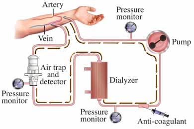 emodialisi schema.jpg
