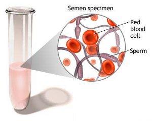 Emospermia : cause, diagnosi e trattamenti