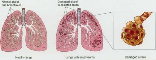 Enfisema polmonare: segni sintomi e terapie