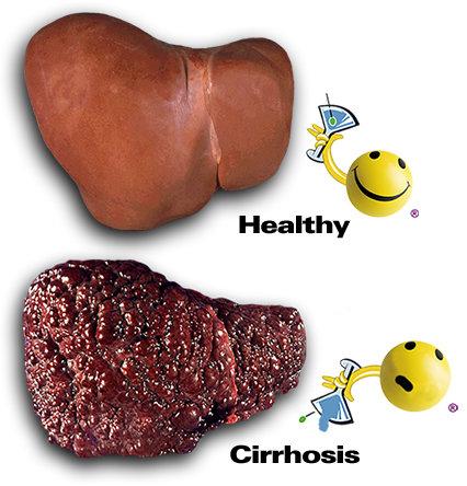 Epatite A:sintomi, segni, metodi di contagio, prevenzione e cure