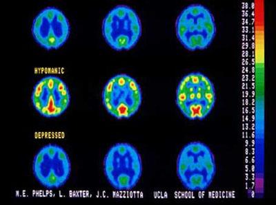 Depressione negli adolescenti : sintomi, cause, diagnosi e terapie