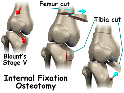 Osteotomia del ginocchio : procedura, rischi, benefici e recupero