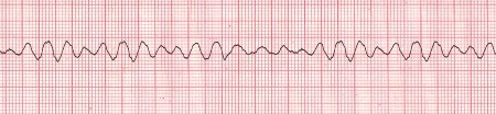 Fibrillazione ventricolare: sintomi, cause e cure