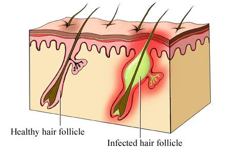 Follicolite: tipi e trattamenti