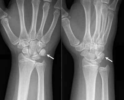 Fratture del polso e della mano : sintomi, cure e chirurgia