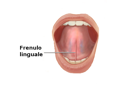 frenulo_linguale_anchiloglossia.jpg