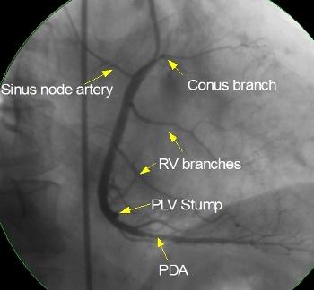immagine a raggi-x. della coronarografia.jpg