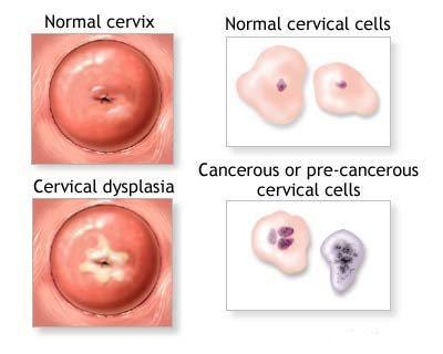 Pap test : procedura, informazioni e vantaggi