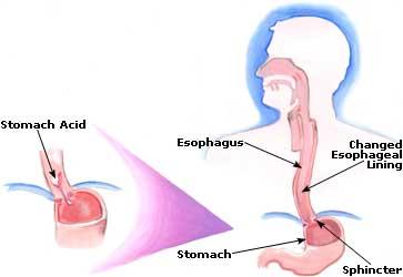 Indigestione: cosa la causa?
