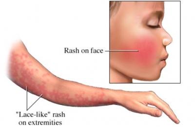 infezione da parvovirus1.jpg