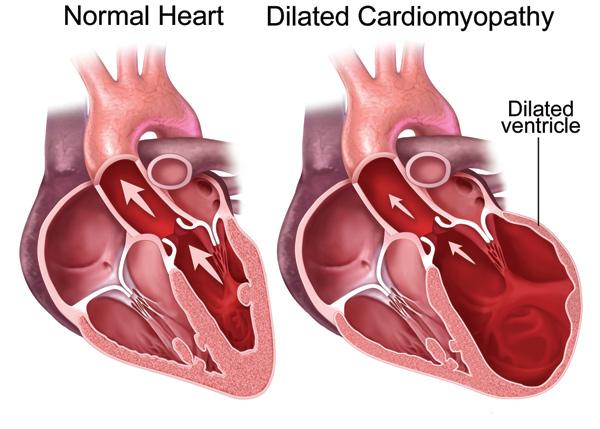 inform-cardiomiopatia.jpg