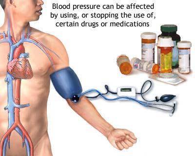 Ipertensione secondaria : cause, complicazioni e cure