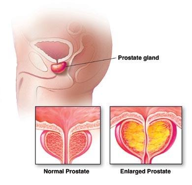 Allargamento della prostata : segni, sintomi, cause, cure e consigli