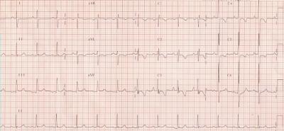 ipertrofia ventricolare.jpg