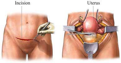 Isterectomia addominale : informazioni, rischi e utilizzo