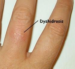 Disidrosi : sintomi, segni, cause, diagnosi e cure