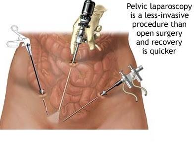 laparoscopia pelvica.jpg