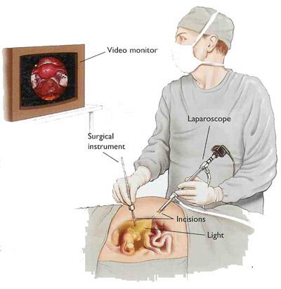laparoscopia21.jpg