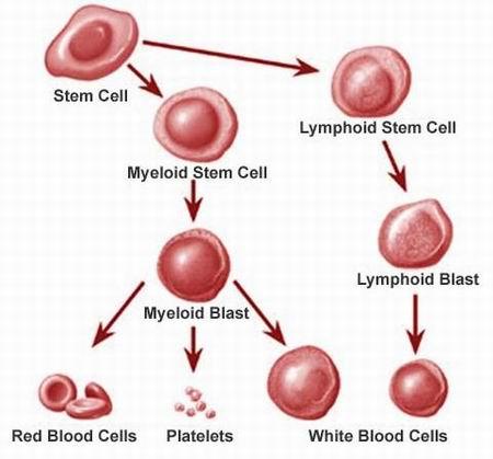 Leucemia: informazioni  e possibili terapie