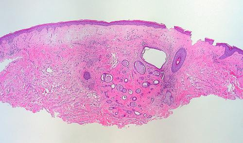 Lichen sclerosus: vediamo di cosa si tratta