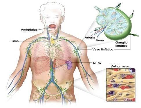 Linfoma non-Hodgkin : segni, cause, sintomi e cure