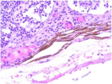 linfonodo sentinella colorazione blu.jpeg