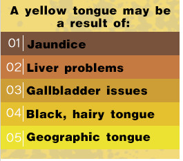 lingua gialla.jpeg