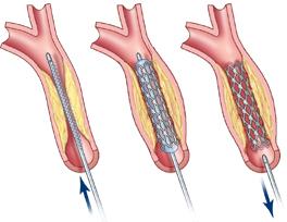 Malattia dell'arteria carotidea: chirurgia e rimedi
