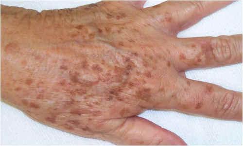 Macchie dell'età : aspetto, diagnosi e cure