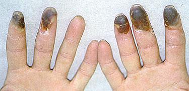 malattia di Buerger 21.jpg