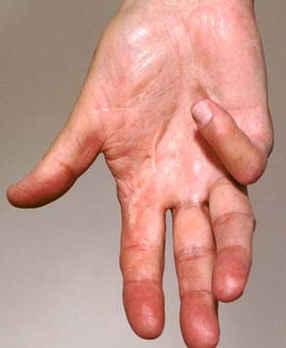 malattia di Dupuytren.jpg
