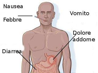 Malattie di origine alimentare: primo soccorso