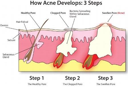 meccanismo acne.jpg
