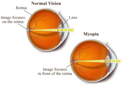 La miopia: un problema molto diffuso