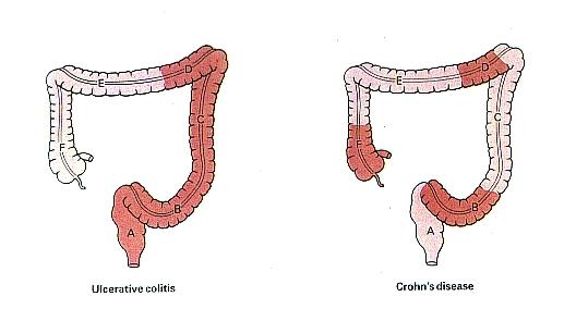 morbo di crohn.jpg