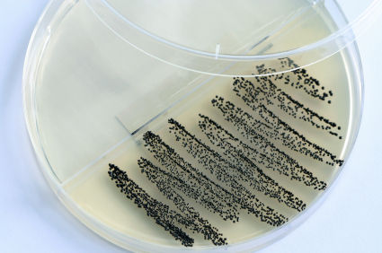 mrsa coltura batterica.jpg